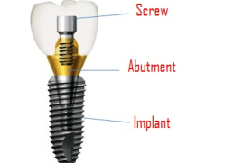 conventional-dental-implant