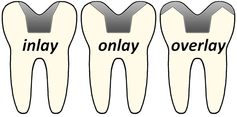 dental onlay