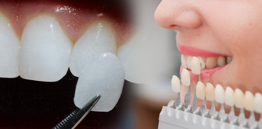 Dental veneers - AllDental Travel - Dental Tourism in Bulgaria