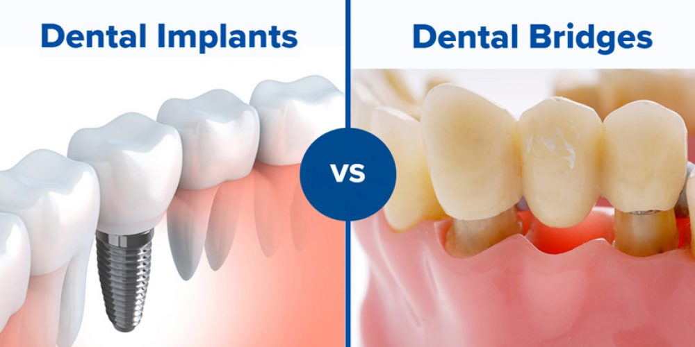 Dental Implant vs. Dental Bridge: what to choose?