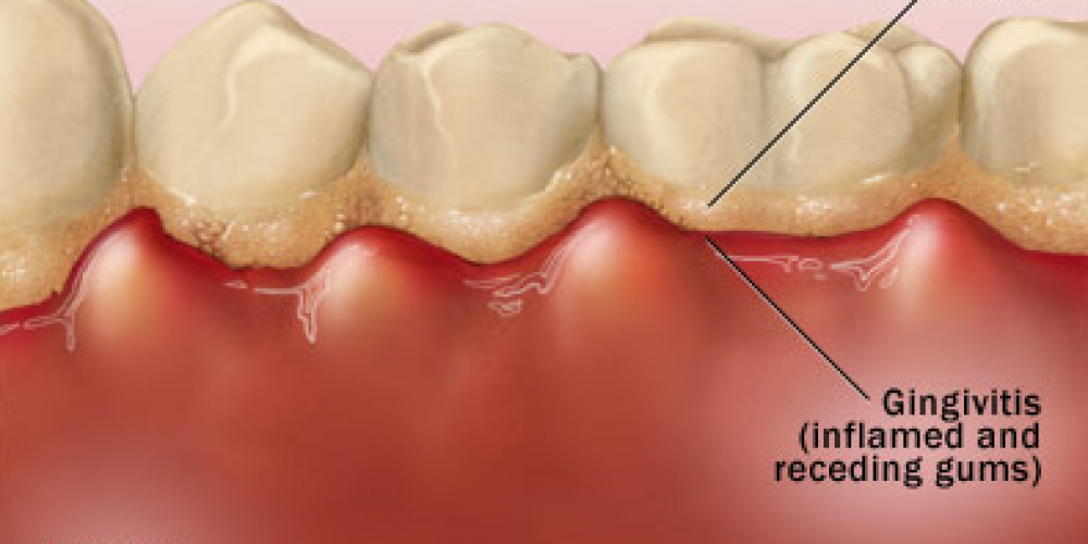 What is periodontitis?