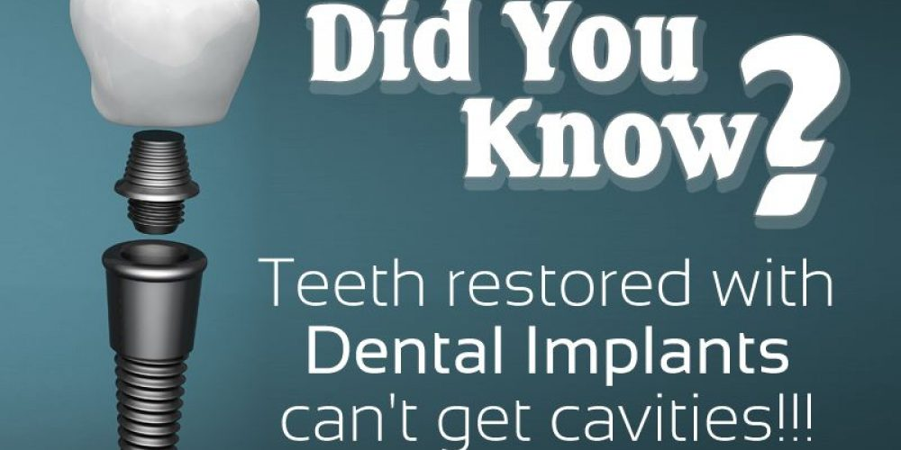 Fun Facts About Dental Implants