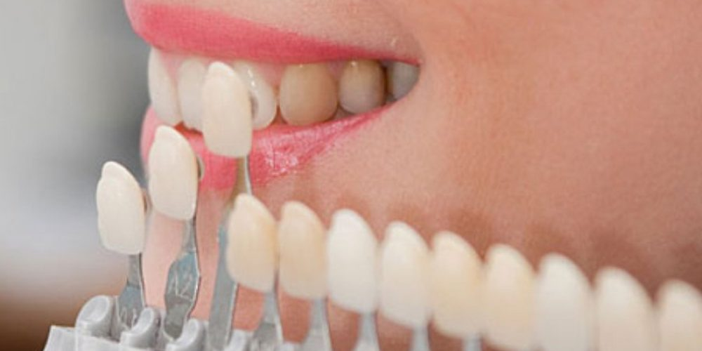 Veneers – pros and cons