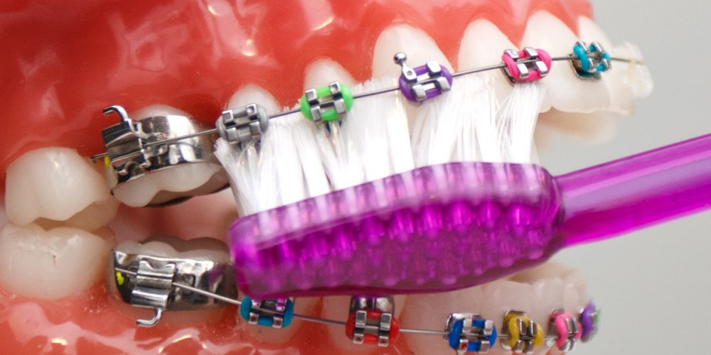 How to avoid bad breath with braces