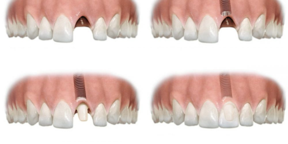 How are dental implants placed?