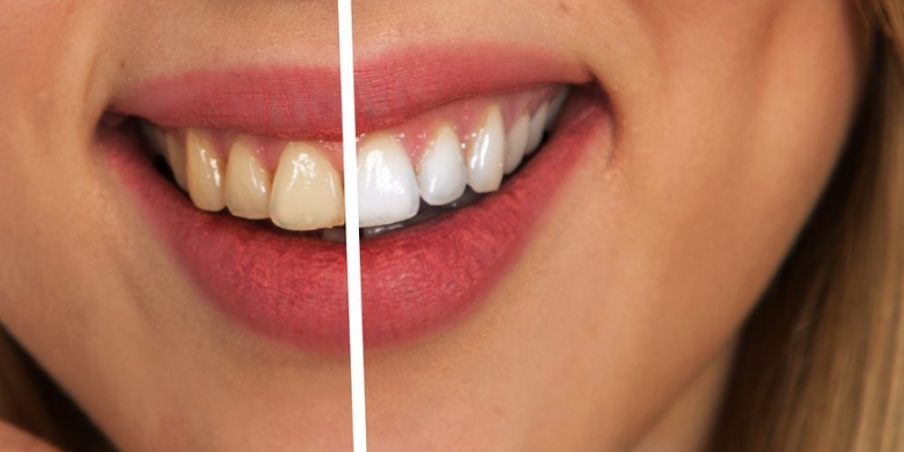 How to get your whitest and brightest smile