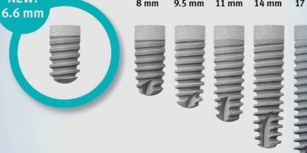 What you need to know about dental implants?